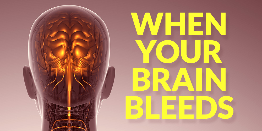 All About Aneurysms: What Happens When Your Brain Bleeds