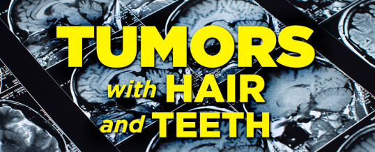 Tumors With Hair And Teeth: What Are Teratomas and Germ Cell Tumors?