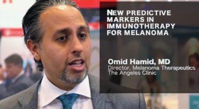 weekly infusuon melanoma update
