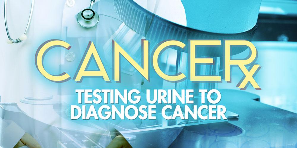 Testing Urine to Diagnose Cancer
