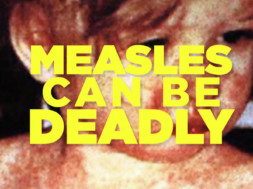 measles-can-be-deadly-dr-drew-2019
