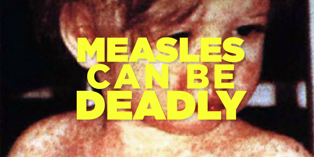 Measles Can Be Deadly – Get Vaccinated!